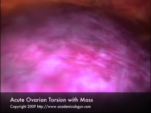 Ovarian Torsion with Mass