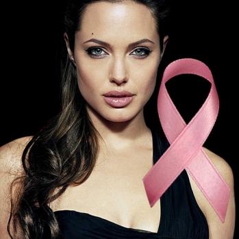 angelina-jolie-mastectomy